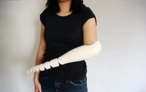 Prosthetic-arm1